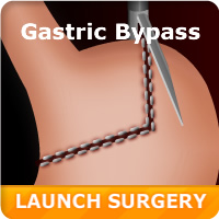 Virtual Gastric Bypass Surgery