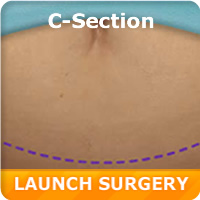 Cesarean Surgery Simulation