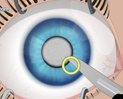 Eye Surgery