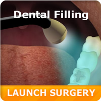 Virtual Amalgam & Composite Filling
