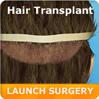 Hair Transplant Simulation