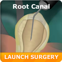 Root Canal Simulation