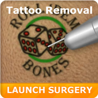 Laser Tattoo Simulation