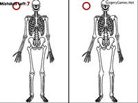 Skeletal Differences