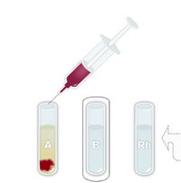 The Blood Typing